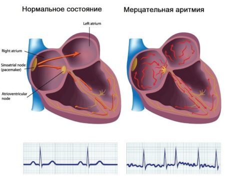 Мерцательная аритмия сердца — лечение народными средствами ...