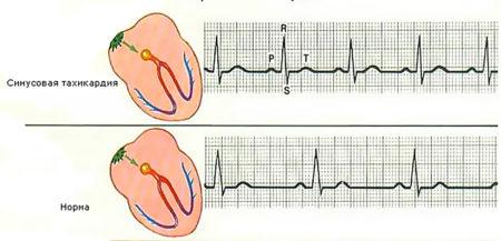 Синусовая тахикардия сердца что это
