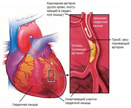 Основные симптомы инфаркта у женщин