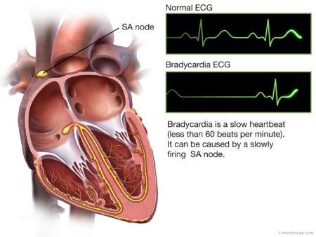 какие препараты назначают при брадикардии сердца