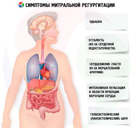 Диагностика и лечение аортальной регургитации
