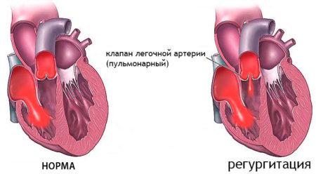 Пульмональная регургитация 1 степени
