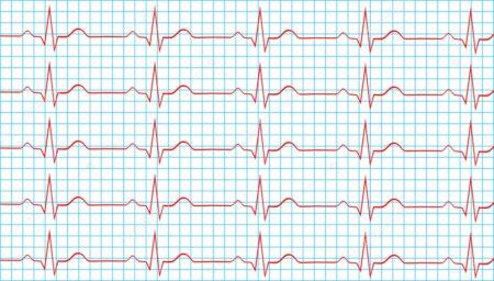 Нерегулярность ритма сердца норма в процентах