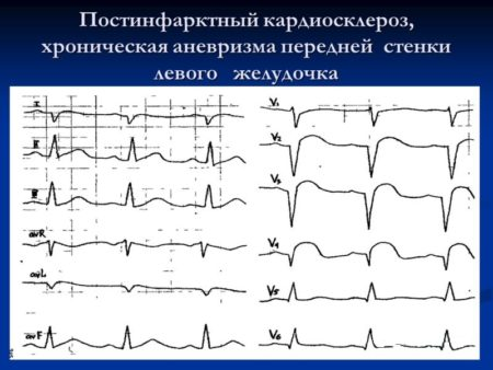 Атеросклеротический кардиосклероз сердца, причины, лечение » Популярно о здоровье