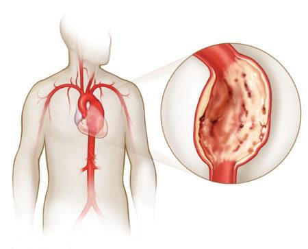 Коарктация аорты у взрослых и детей: симптомы, диагностика и лечение