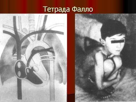 Тетрада Фалло — этиология заболевания у детей и у плода, симптомы ...