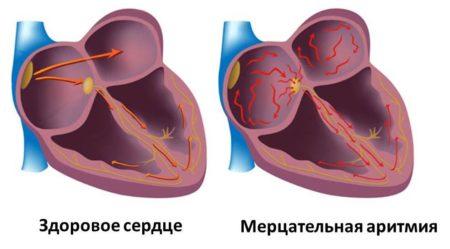 Чем снять толчки в сердце