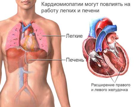 Обзор кардиомиопатии: причины диагностика лечение и прогноз