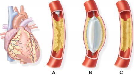 Питание после стентирования сосудов сердца