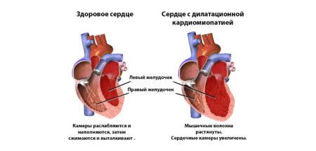 Кардиомиопатия — основные признаки заболевания, классификация и ...