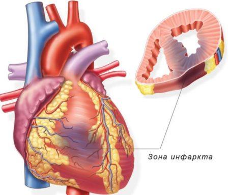 Болит сердце, тошнит, кружится голова - список болезней с похожими симптомами