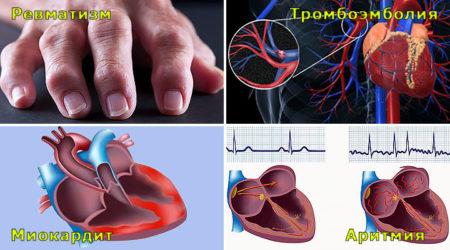 Боли в сердце при ангине