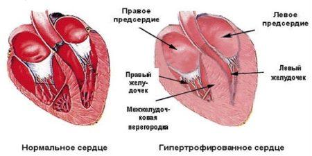 Если сердце увеличено что это значит
