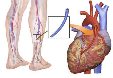Шунтирование: сосудов головного мозга ног сердца и желудка