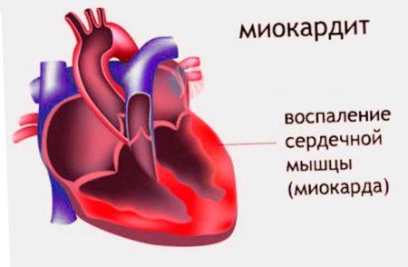 Тупая ноющая боль в области сердца