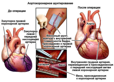 Методы реваскуляризации миокарда