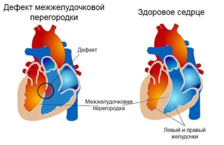 Шумы в сердце причины