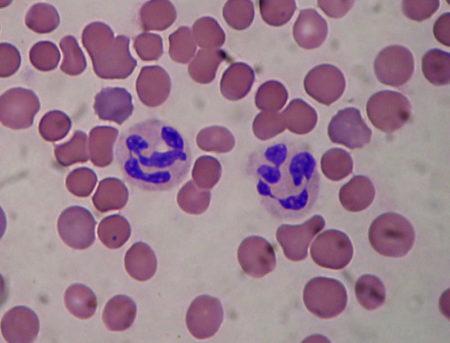 Нейтрофилы сегментоядерные повышены в крови