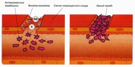 В анализе крови снижены тромбоциты