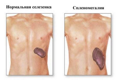 Тромбоциты 137