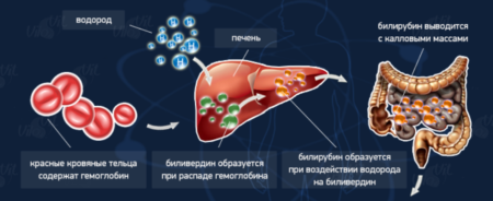 Анализ крови на билирубин у новорожденных натощак