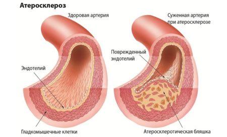 При каком холестерине назначают статины