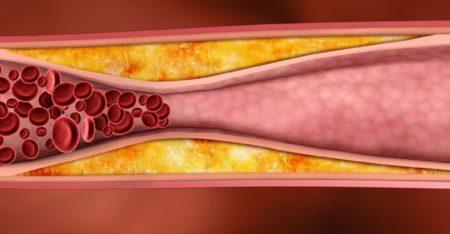 Липидограмма коэффициент атерогенности ниже нормы