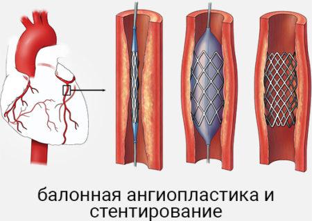 Балонная ангиопластика — показания к проведению, подготовка ...