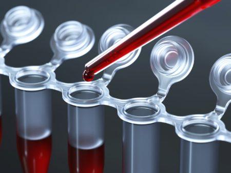 Анализ крови на аст расшифровка