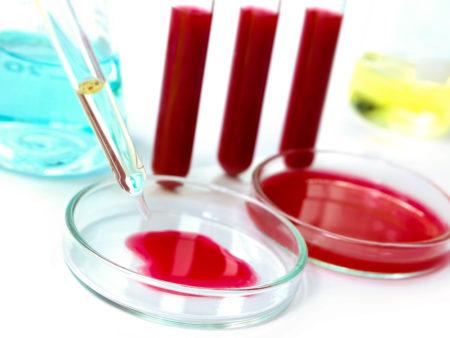 Какая норма анализов крови у женщины
