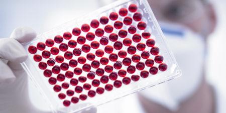 Развернутый анализ крови