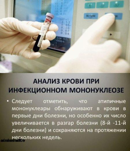 Анализ крови с мононуклеарами