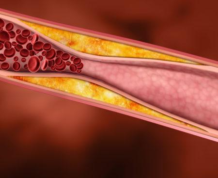 Что включает в себя анализ крови на биохимию