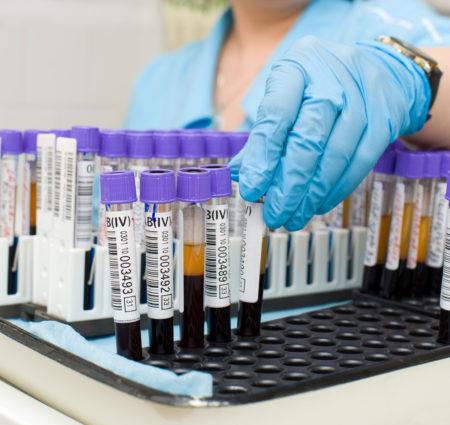 Клинический анализ крови подготовка можно ли есть