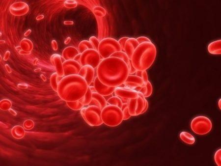 Профилактика тромбов в сосудах – методы диагностики и лечения