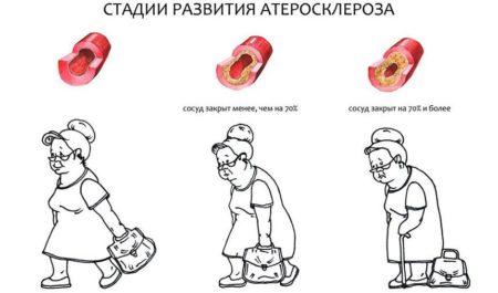 Атеросклероз сосудов нижних конечностей – симптомы и лечение патологии