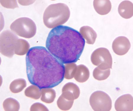 Лейкоз бласты в крови