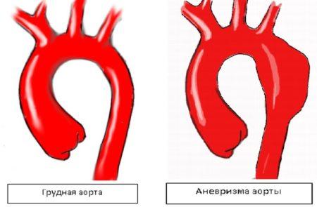 Разрыв аорты сердца можно спасти человека