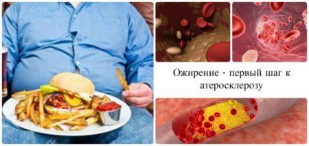 Как предотвратить атеросклероз – причины и признаки болезни, первичная и вторичная профилактика