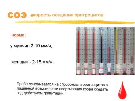 Общий анализ крови болезни