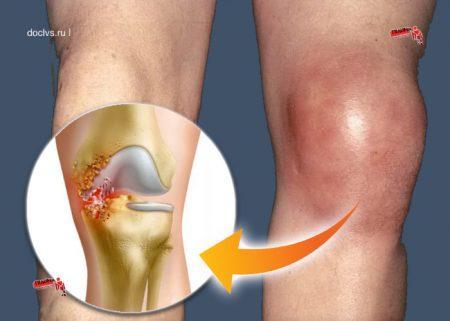 Инфекции колена