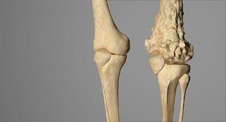 Пример перерождения кости в злокачественную опухоль