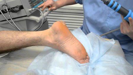 Физиопроцедуры в области пятки