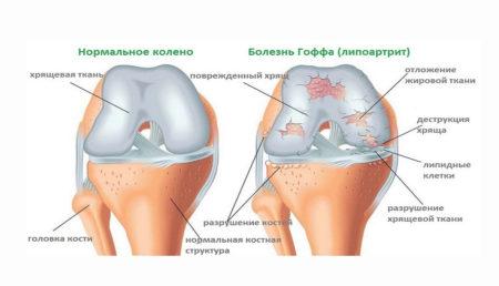 Болезнь Гоффа – боль с внутренней стороны колена