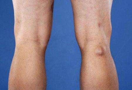 Лимфоузлы колена