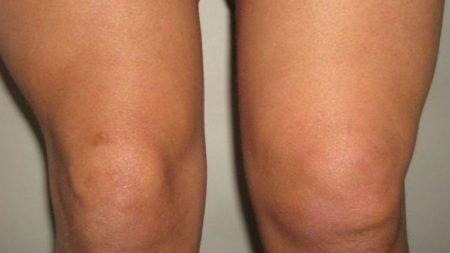 Отечность колена