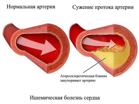 Инвалидность при ибс стенокардия напряжения фк 2