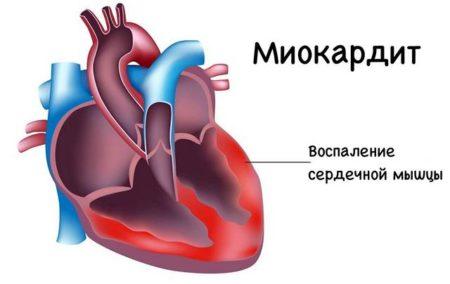 Отдышка и болит в области сердца что