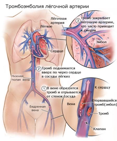 Повышенный гемоглобин у женщин 160