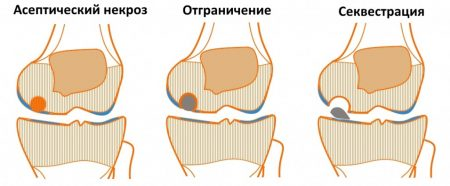 Боли коленных суставах подростков